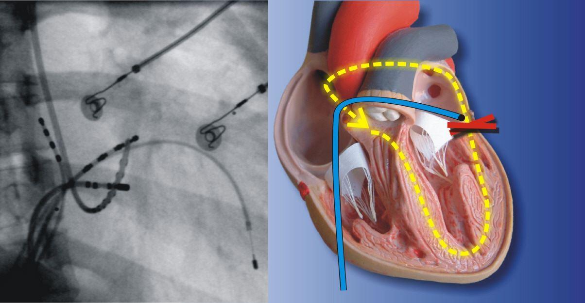 Elektrophysiologische Untersuchung und Ablation